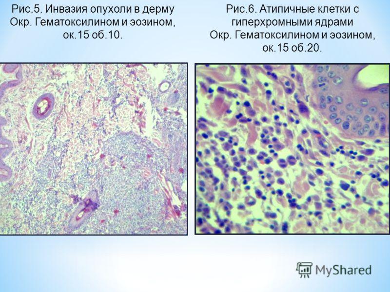 Рис.5. Инвазия опухоли в дерму Окр. Гематоксилином и эозином, ок.15 об.10. Рис.6. Атипичные клетки с гиперхромными ядрами Окр. Гематоксилином и эозином, ок.15 об.20.