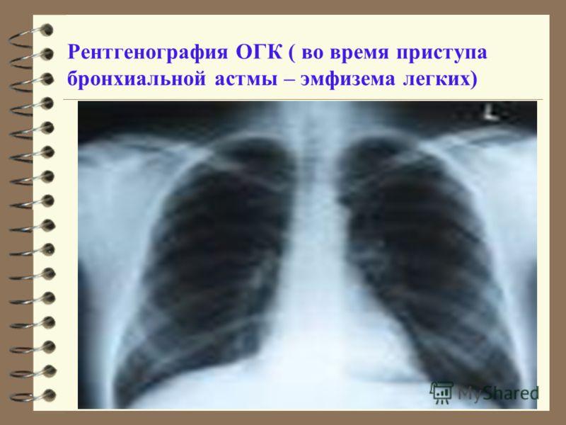 Рентгенография ОГК ( во время приступа бронхиальной астмы – эмфизема легких)