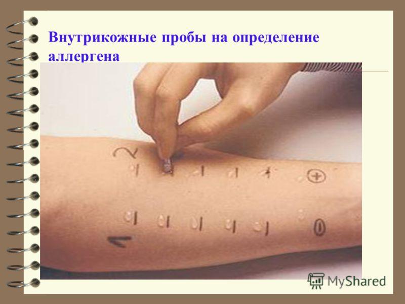 Внутрикожные пробы на определение аллергена