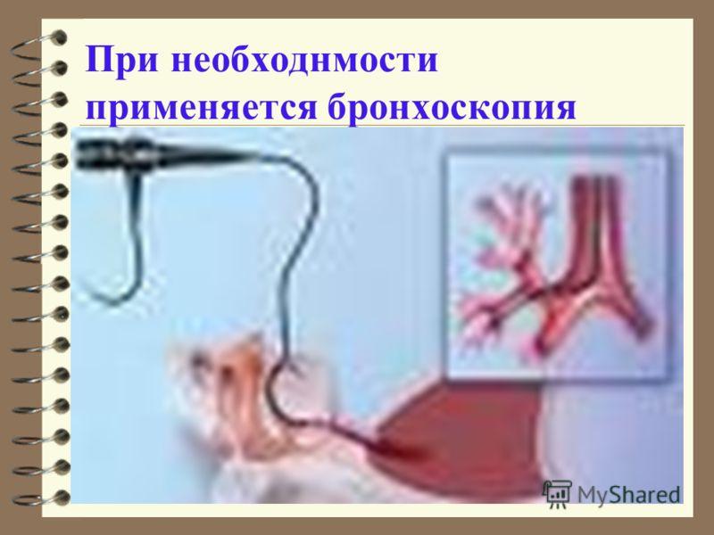 При необходнмости применяется бронхоскопия