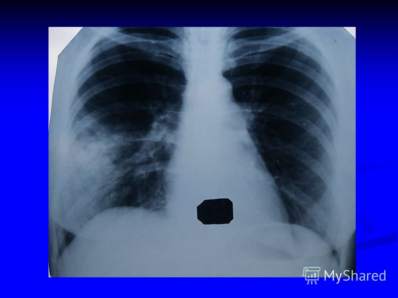 Диагностика пневмоний анамнез анамнез клиника клиника лабораторные данные лабораторные данные рентгенологическое исследование рентгенологическое исследование