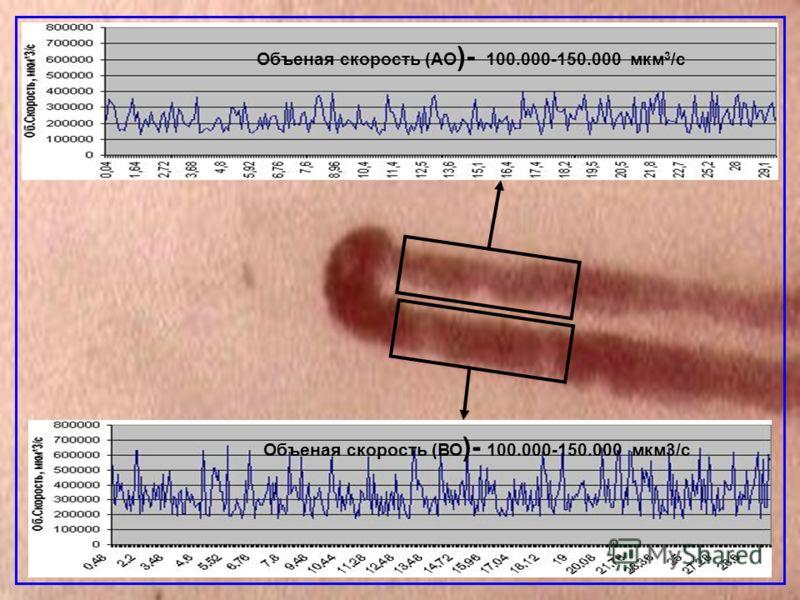 Объеная скорость (АО )- 100.000-150.000 мкм 3 /с Объеная скорость (ВО )- 100.000-150.000 мкм3/с