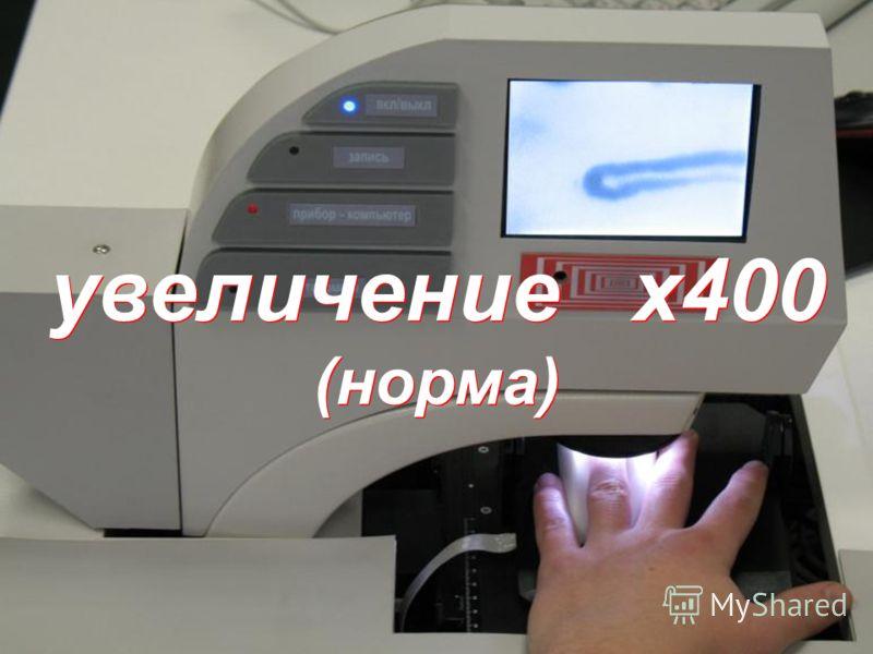 увеличение х400 (норма)