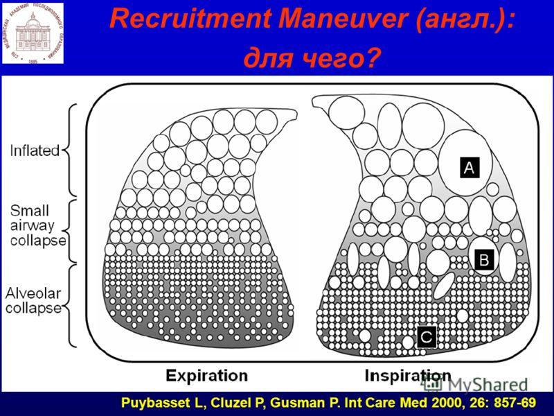Recruitment Maneuver (англ.): для чего? Puybasset L, Cluzel P, Gusman P. Int Care Med 2000, 26: 857-69