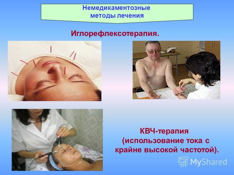 Немедикаментозные методы лечения Иглорефлексотерапия. КВЧ-терапия (использование тока с крайне высокой частотой).