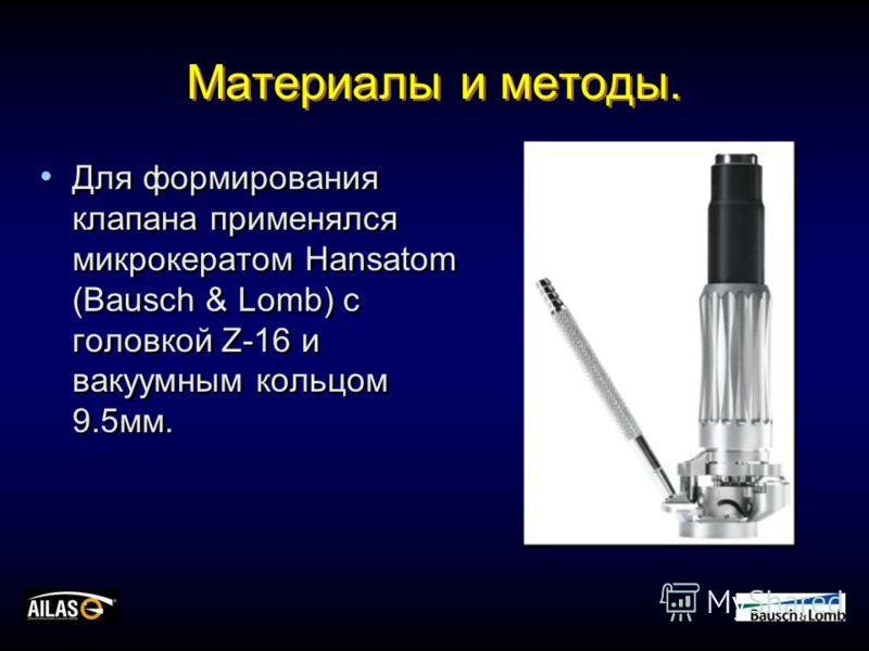 Материалы и методы. Для формирования клапана применялся микрокератом Hansatom (Bausch & Lomb) с головкой Z-16 и вакуумным кольцом 9.5мм.