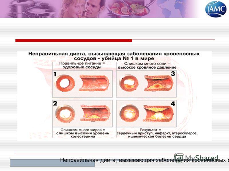 Неправильная диета, вызывающая заболевания кровеносных сосудов