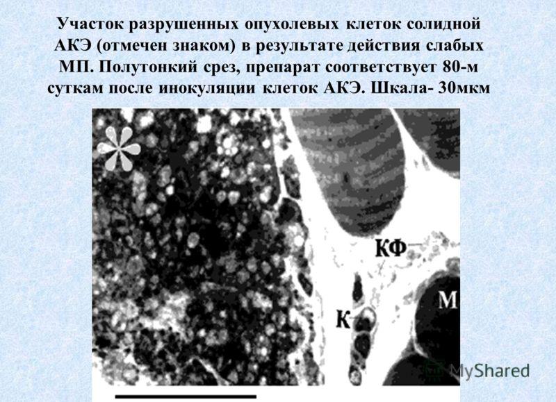 Участок разрушенных опухолевых клеток солидной АКЭ (отмечен знаком) в результате действия слабых МП. Полутонкий срез, препарат соответствует 80-м суткам после инокуляции клеток АКЭ. Шкала- 30мкм