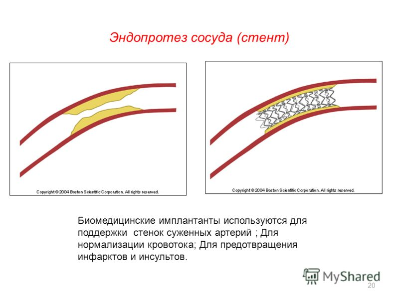 Эндопротез сосуда (стент) Биомедицинские имплантанты используются для поддержки стенок суженных артерий ; Для нормализации кровотока; Для предотвращения инфарктов и инсультов. 20