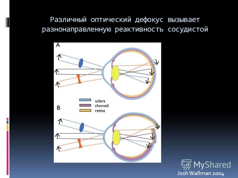 Различный оптический дефокус вызывает разнонаправленную реактивность сосудистой Josh Wallman 2004