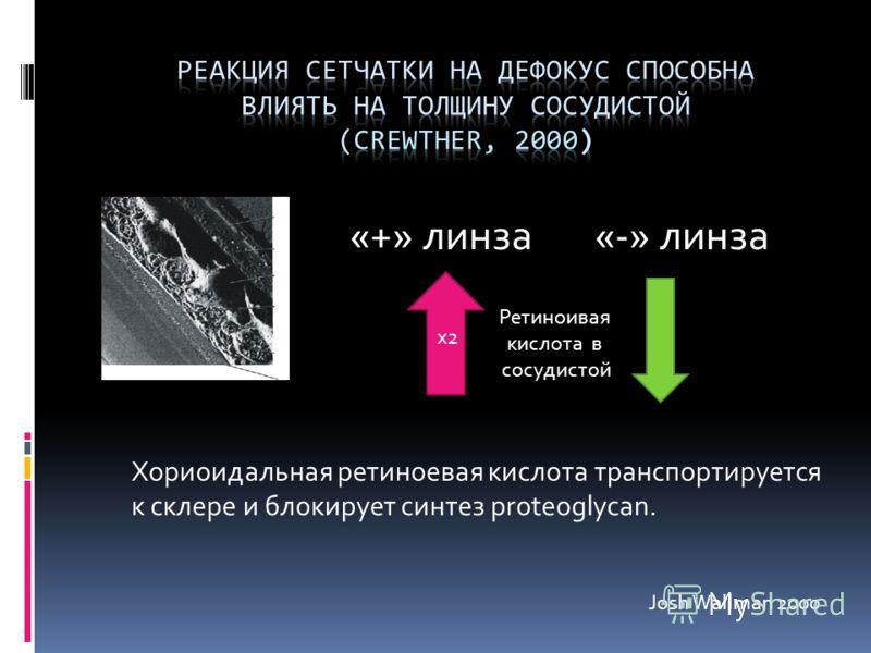«+» линза Ретиноивая кислота в сосудистой «-» линза х2 Хориоидальная ретиноевая кислота транспортируется к склере и блокирует синтез proteoglycan. Josh Wallman 2000