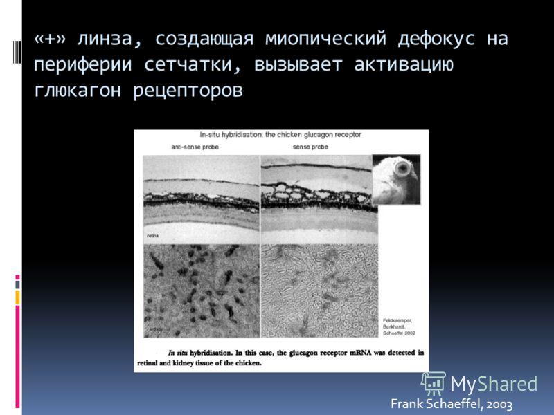 «+» линза, создающая миопический дефокус на периферии сетчатки, вызывает активацию глюкагон рецепторов Frank Schaeffel, 2003