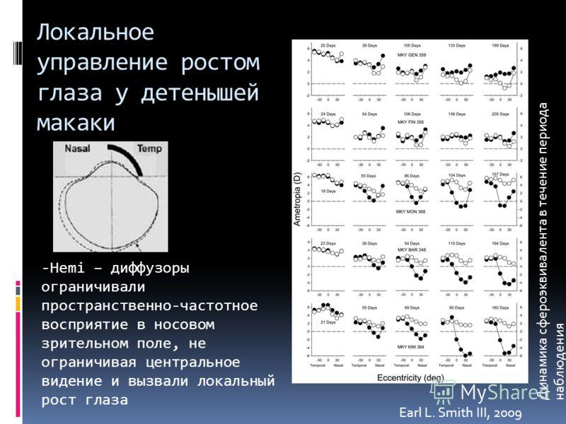 Локальное управление ростом глаза у детенышей макаки Earl L. Smith III, 2009 -Hemi – диффузоры ограничивали пространственно-частотное восприятие в носовом зрительном поле, не ограничивая центральное видение и вызвали локальный рост глаза Динамика сфе