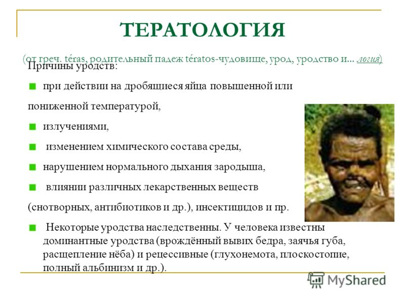 Тератология фото