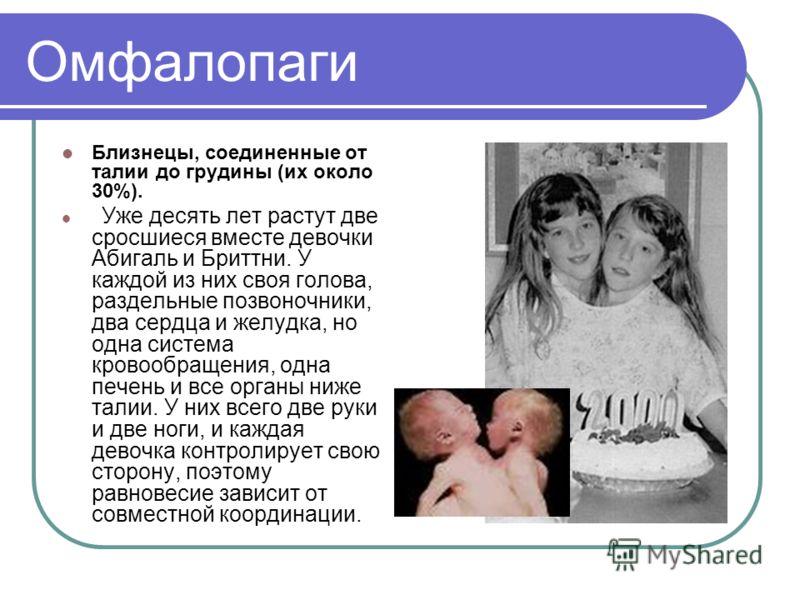 Омфалопаги Близнецы, соединенные от талии до грудины (их около 30%). Уже десять лет растут две сросшиеся вместе девочки Абигаль и Бриттни. У каждой из них своя голова, раздельные позвоночники, два сердца и желудка, но одна система кровообращения, одн