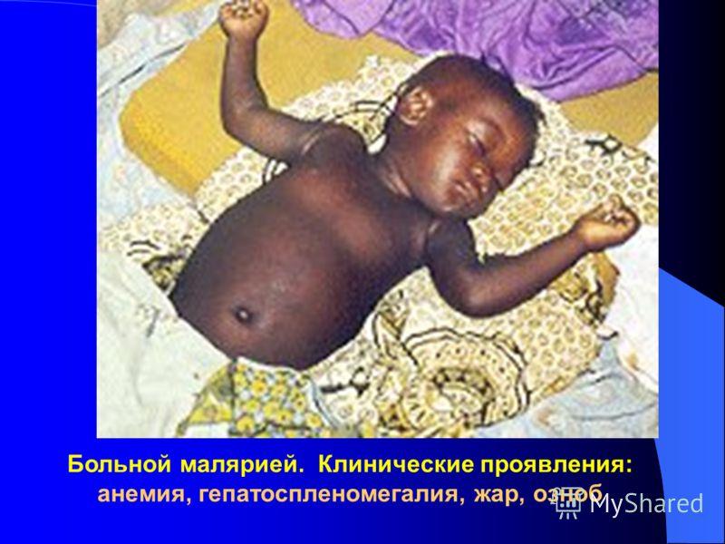 Больной малярией. Клинические проявления: анемия, гепатоспленомегалия, жар, озноб