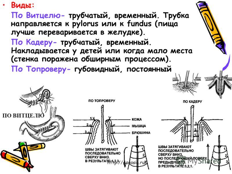 Виды: По Витцелю- трубчатый, временный. Трубка направляется к pylorus или к fundus (пища лучше переваривается в желудке). По Кадеру- трубчатый, временный. Накладывается у детей или когда мало места (стенка поражена обширным процессом). По Топроверу-