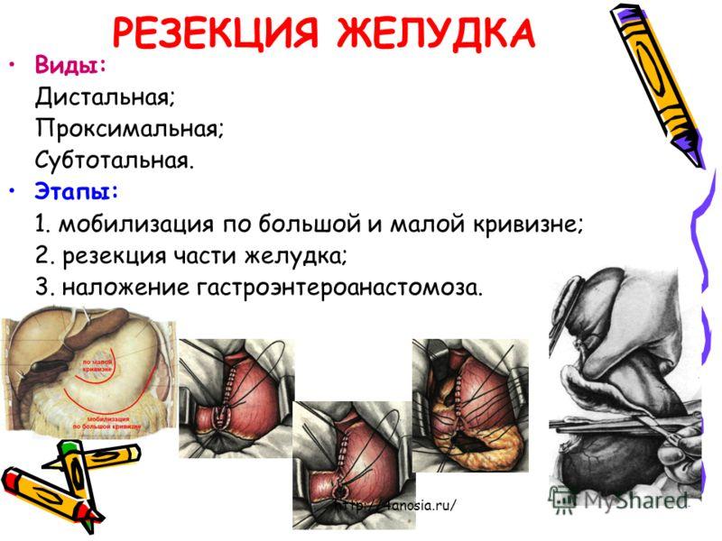 РЕЗЕКЦИЯ ЖЕЛУДКА Виды: Дистальная; Проксимальная; Субтотальная. Этапы: 1. мобилизация по большой и малой кривизне; 2. резекция части желудка; 3. наложение гастроэнтероанастомоза. http://4anosia.ru/