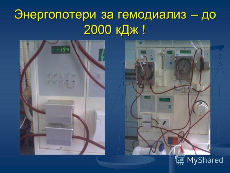 Энергопотери за гемодиализ – до 2000 кДж !
