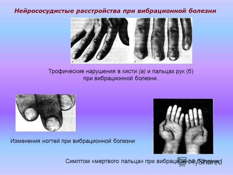 Трофические нарушения в кисти (а) и пальцах рук (б) при вибрационной болезни. Изменения ногтей при вибрационной болезни Симптом «мертвого пальца» при вибрационной болезни. Нейрососудистые расстройства при вибрационной болезни