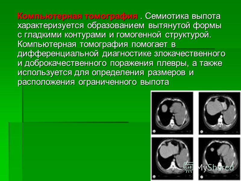 Компьютерная томография. Семиотика выпота характеризуется образованием вытянутой формы с гладкими контурами и гомогенной структурой. Компьютерная томография помогает в дифференциальной диагностике злокачественного и доброкачественного поражения плевр
