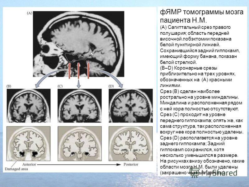 фЯМР томограммы мозга пациента H.M. (A) Сагиттальный срез правого полушария; область передней височной лобэктомии показана белой пунктирной линией. Сохранившийся задний гиппокамп, имеющий форму банана, показан белой стрелкой. (B–D) Коронарные срезы п