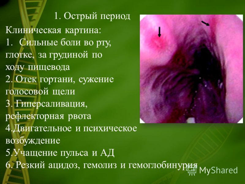 1. Острый период Клиническая картина: 1.Сильные боли во рту, глотке, за грудиной по ходу пищевода 2. Отек гортани, сужение голосовой щели 3. Гиперсаливация, рефлекторная рвота 4.Двигательное и психическое возбуждение 5.Учащение пульса и АД 6. Резкий