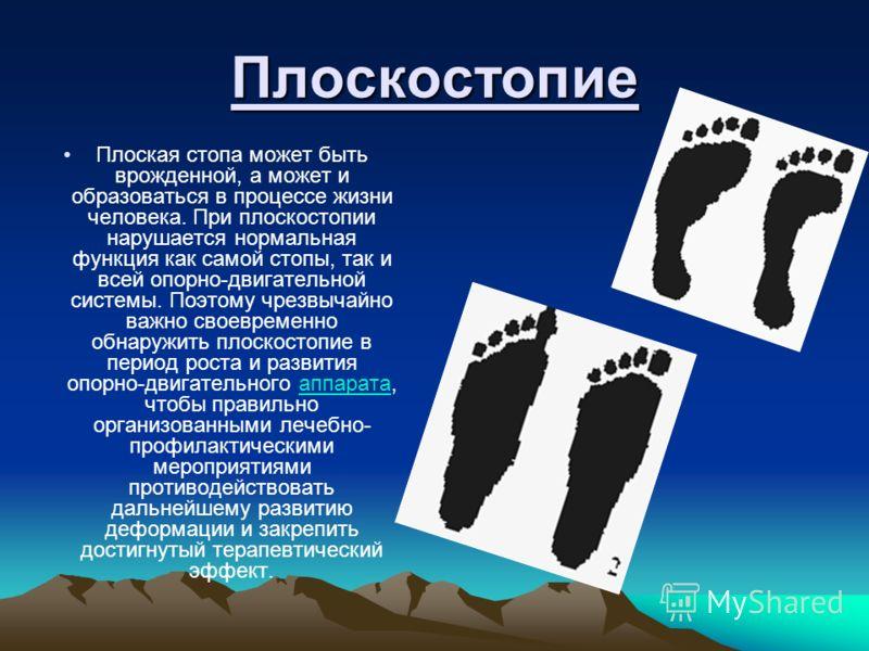 Плоскостопие Плоская стопа может быть врожденной, а может и образоваться в процессе жизни человека. При плоскостопии нарушается нормальная функция как самой стопы, так и всей опорно-двигательной системы. Поэтому чрезвычайно важно своевременно обнаруж