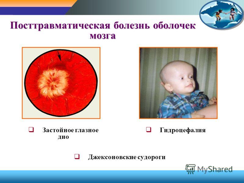 Посттравматическая болезнь оболочек мозга Гидроцефалия Застойное глазное дно Джексоновские судороги