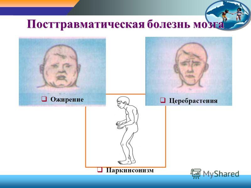 Посттравматическая болезнь мозга Ожирение Церебрастения Паркинсонизм