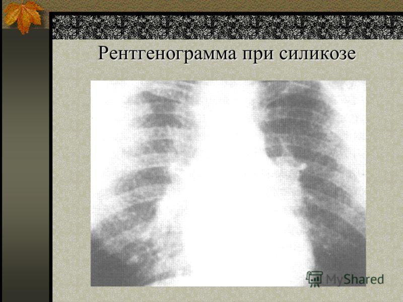 Рентгенограмма при силикозе