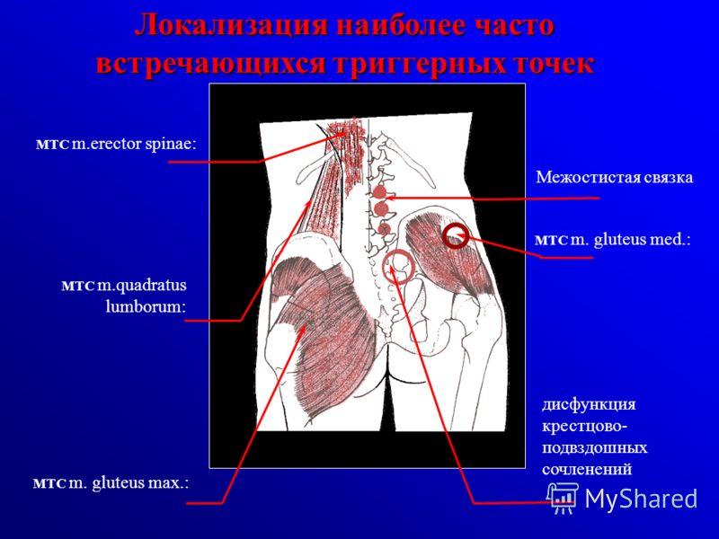 МТС m.erector spinae: МТС m.quadratus lumborum: МТС m. gluteus max.: Межостистая связка дисфункция крестцово- подвздошных сочленений МТС m. gluteus med.: Локализация наиболее часто встречающихся триггерных точек