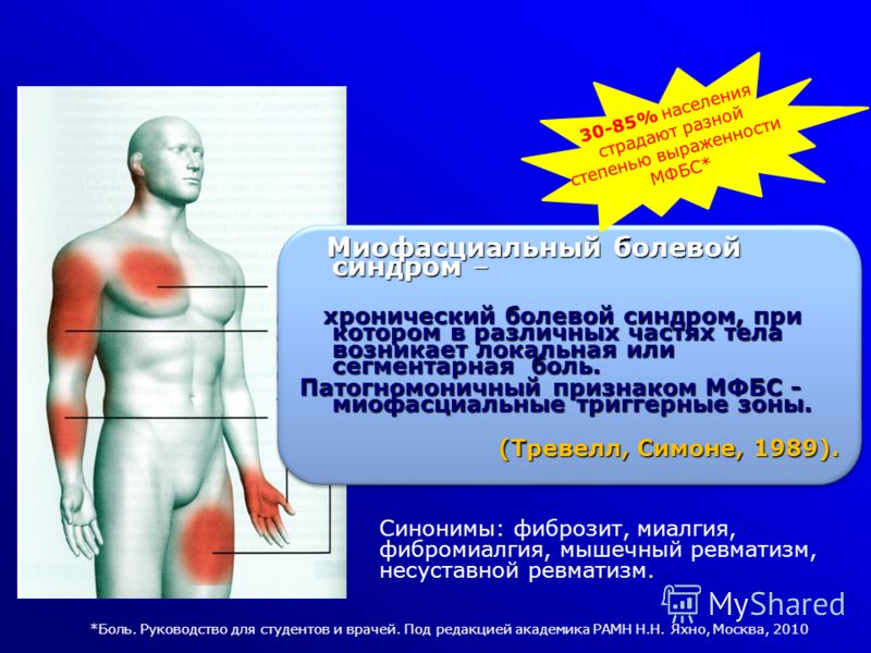 Синонимы: фиброзит, миалгия, фибромиалгия, мышечный ревматизм, несуставной ревматизм. Миофасциальный болевой синдром – Миофасциальный болевой синдром – хронический болевой синдром, при котором в различных частях тела возникает локальная или сегментар