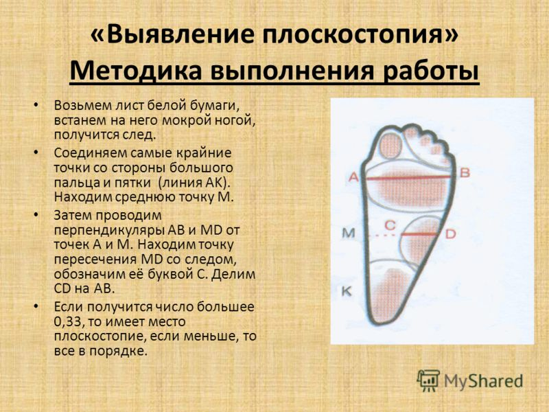«Выявление плоскостопия» Методика выполнения работы Возьмем лист белой бумаги, встанем на него мокрой ногой, получится след. Соединяем самые крайние точки со стороны большого пальца и пятки (линия AK). Находим среднюю точку M. Затем проводим перпенди