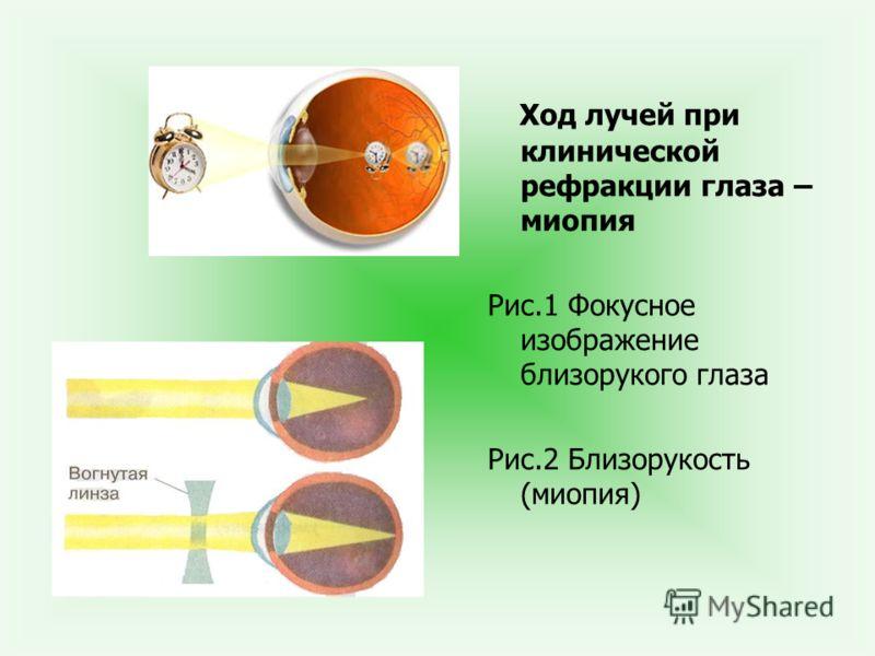 Ход лучей при клинической рефракции глаза – миопия Рис.1 Фокусное изображение близорукого глаза Рис.2 Близорукость (миопия)