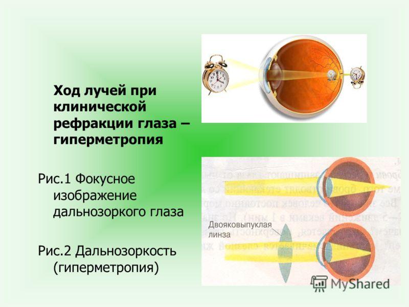 Ход лучей при клинической рефракции глаза – гиперметропия Рис.1 Фокусное изображение дальнозоркого глаза Рис.2 Дальнозоркость (гиперметропия)