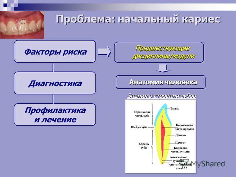 Факторы риска Диагностика Профилактика и лечение Предшествующие дисциплины/модули Анатомия человека Знания о строении зубов Проблема: начальный кариес