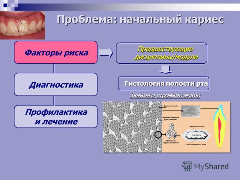 Факторы риска Диагностика Профилактика и лечение Предшествующие дисциплины/модули Гистология полости рта Знания о строении эмали Проблема: начальный кариес