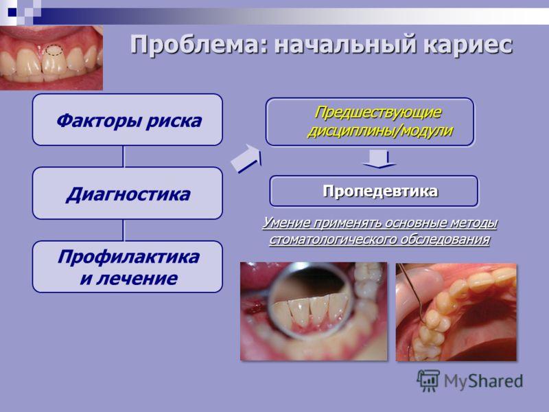 Факторы риска Диагностика Профилактика и лечение Предшествующие дисциплины/модули Пропедевтика Умение применять основные методы стоматологического обследования Проблема: начальный кариес