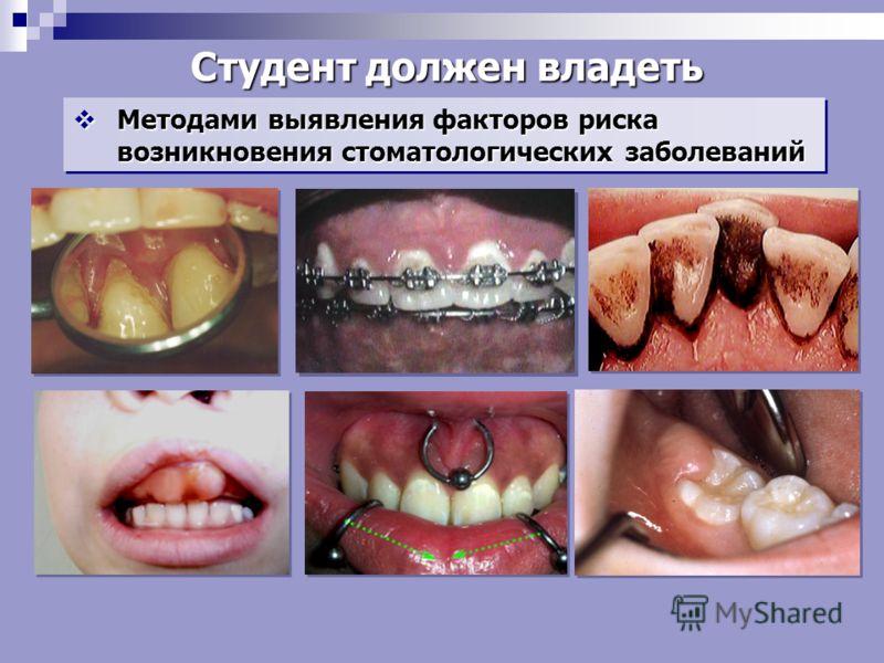 Методами выявления факторов риска возникновения стоматологических заболеваний Методами выявления факторов риска возникновения стоматологических заболеваний Студент должен владеть
