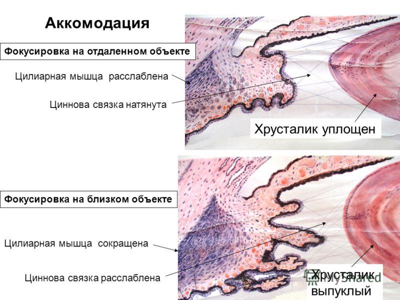 Аккомодация Цилиарная мышца расслаблена Циннова связка натянута Хрусталик уплощен Фокусировка на отдаленном объекте Хрусталик выпуклый Фокусировка на близком объекте Цилиарная мышца сокращена Циннова связка расслаблена