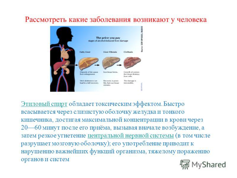 Рассмотреть какие заболевания возникают у человека Этиловый спиртЭтиловый спирт обладает токсическим эффектом. Быстро всасывается через слизистую оболочку желудка и тонкого кишечника, достигая максимальной концентрации в крови через 2060 минут после