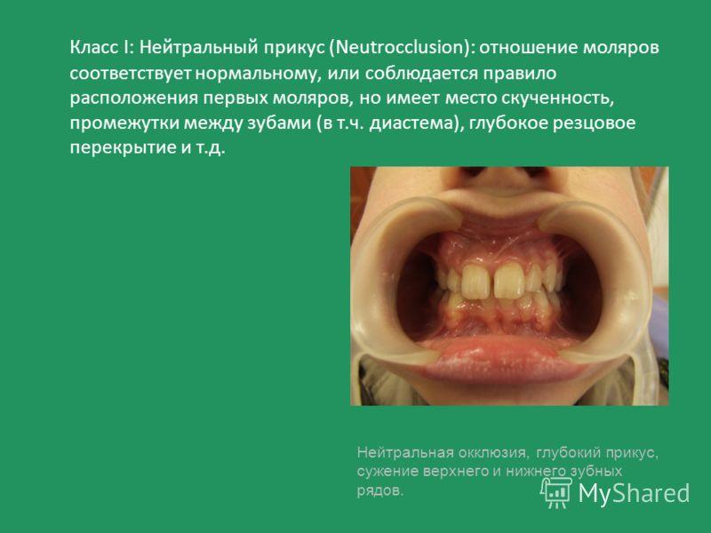 Класс I: Нейтральный прикус (Neutrocclusion): отношение моляров соответствует нормальному, или соблюдается правило расположения первых моляров, но имеет место скученность, промежутки между зубами (в т.ч. диастема), глубокое резцовое перекрытие и т.д.