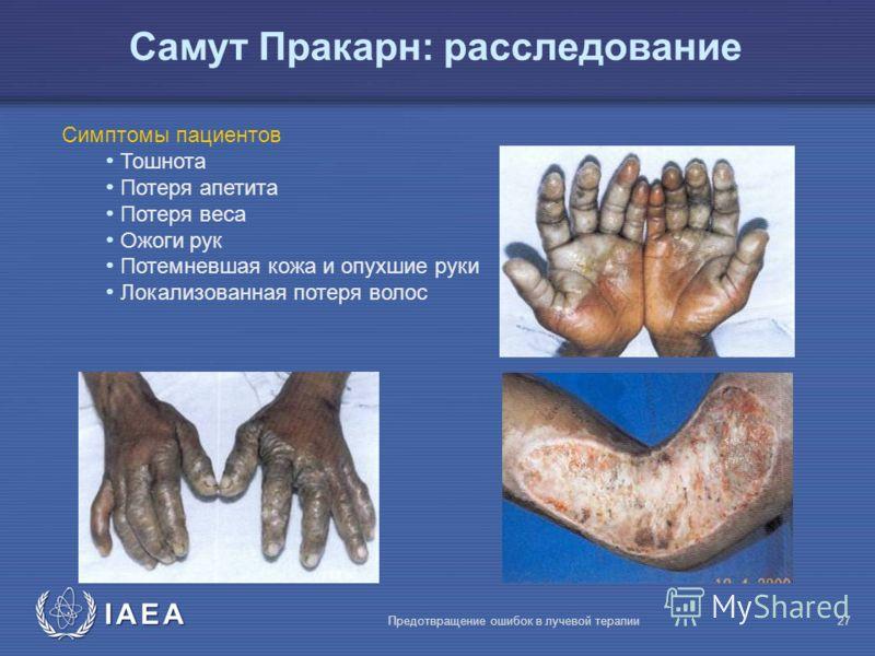 IAEA Предотвращение ошибок в лучевой терапии27 Симптомы пациентов Тошнота Потеря апетита Потеря веса Ожоги рук Потемневшая кожа и опухшие руки Локализованная потеря волос Самут Пракарн: расследование