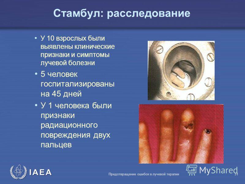 IAEA Предотвращение ошибок в лучевой терапии31 У 10 взрослых были выявлены клинические признаки и симптомы лучевой болезни 5 человек госпитализированы на 45 дней У 1 человека были признаки радиационного повреждения двух пальцев Стамбул: расследование