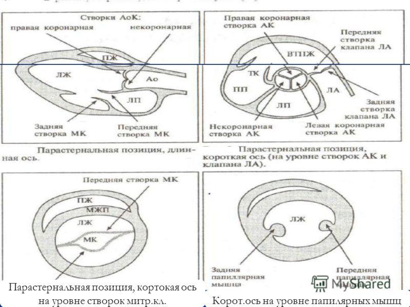 Парастернальная позиция, кортокая ось на уровне створок митр.кл. Корот.ось на уровне папилярных мышц