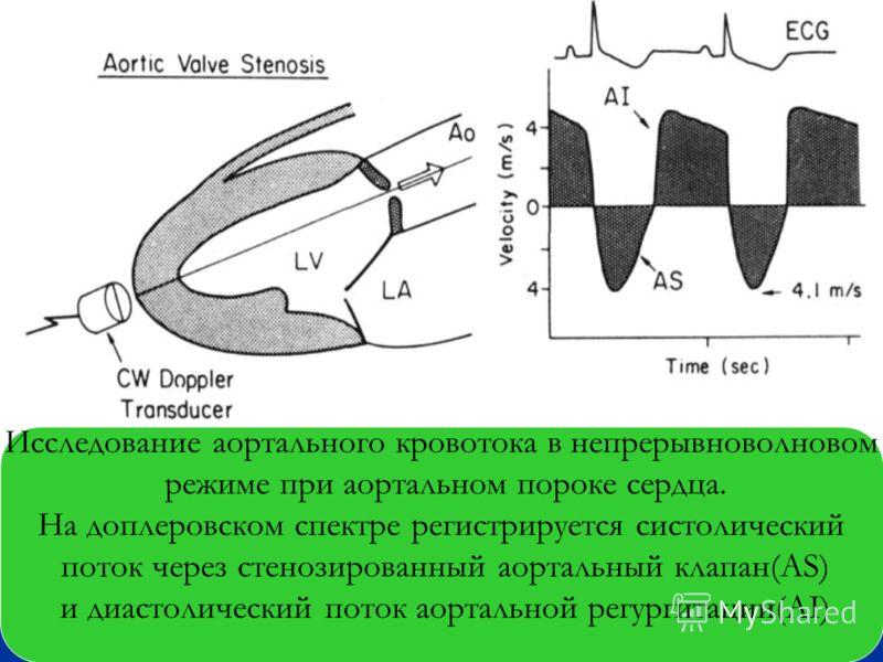 Исследование аортального кровотока в непрерывноволновом режиме при аортальном пороке сердца. На доплеровском спектре регистрируется систолический поток через стенозированный аортальный клапан(AS) и диастолический поток аортальной регургитации(AI)