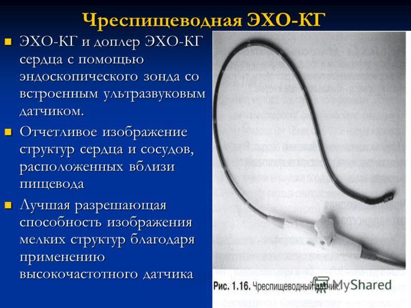 Чреспищеводная ЭХО-КГ ЭХО-КГ и доплер ЭХО-КГ сердца с помощью эндоскопического зонда со встроенным ультразвуковым датчиком. ЭХО-КГ и доплер ЭХО-КГ сердца с помощью эндоскопического зонда со встроенным ультразвуковым датчиком. Отчетливое изображение с