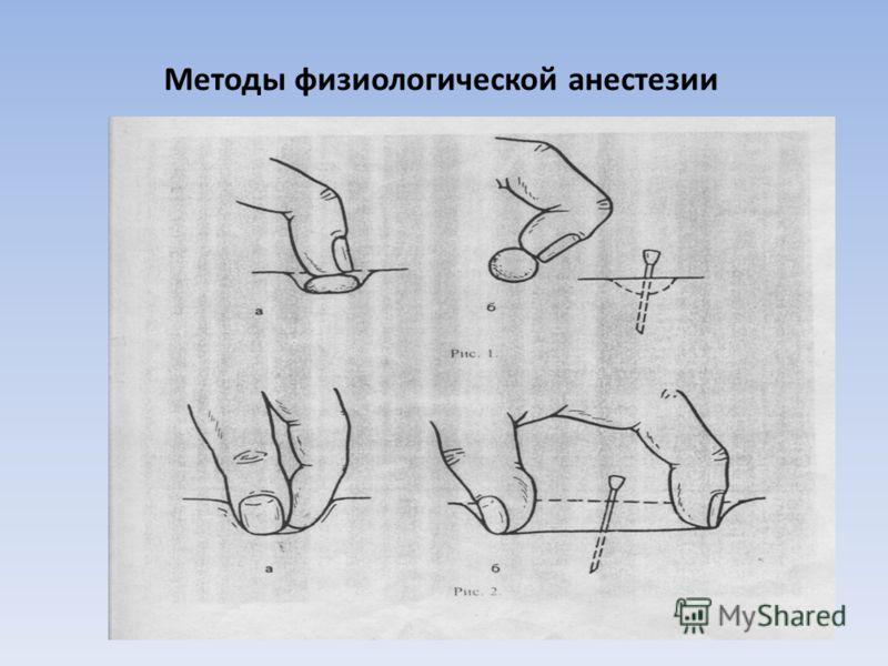 Методы физиологической анестезии