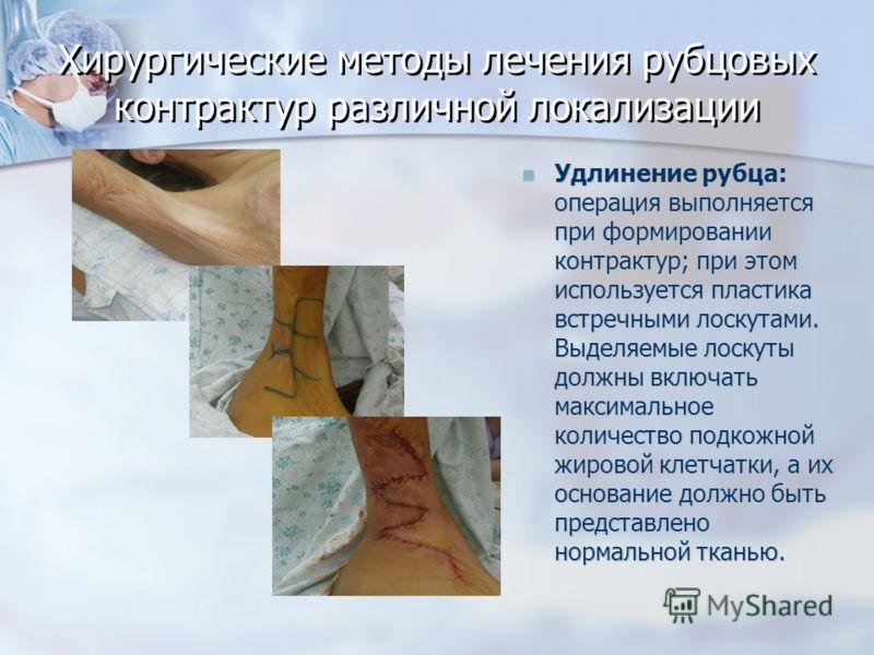 Хирургические методы лечения рубцовых контрактур различной локализации Удлинение рубца: операция выполняется при формировании контрактур; при этом используется пластика встречными лоскутами. Выделяемые лоскуты должны включать максимальное количество